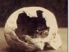 Abby Borden\'s Skull