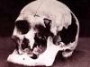 Andrew Borden\'s Skull